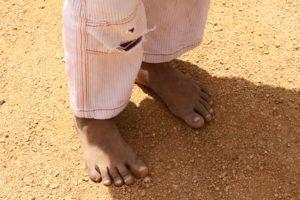 Barfuss im heißen Sand